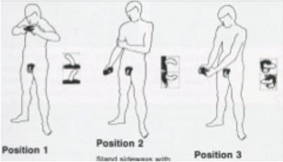 Peyronies disease best positions